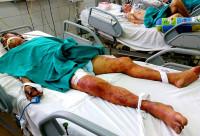Cảnh báo sự nguy hiểm của bệnh liên cầu lợn
