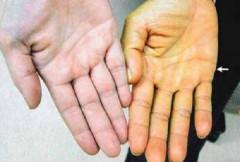 Nguy cơ tử vong vì nhiễm virut sốt vàng