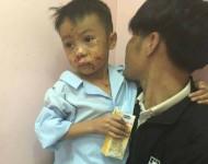 Hà Tĩnh: Nghi đốt kíp nổ, 2 anh em ruột nhập viện cấp cứu