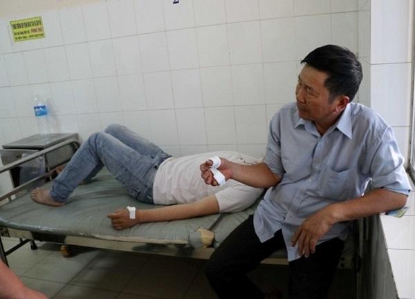 """Vụ nổ súng làm 2 cha con bị thương ở Đà Lạt: """"Lộ"""" hung thủ cùng """"kho"""" vũ khí """"khủng"""" - Hình 2"""
