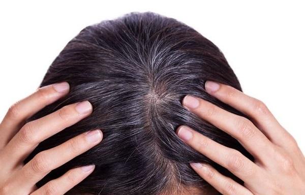 Những loại thực phẩm giúp ngừa tóc bạc sớm