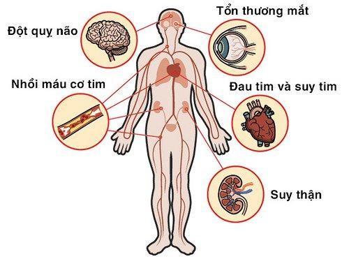 Các biến chứng nguy hiểm của tăng huyết áp vô căn