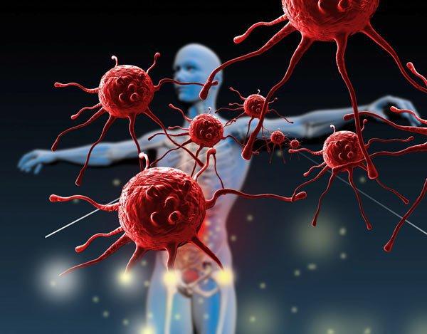 Hệ miễn dịch suy giảm là một trong những nguyên nhân gây bệnh nhiệt miệng, nhiệt lưỡi, nhiệt lợi, nhiệt miệng áp tơ
