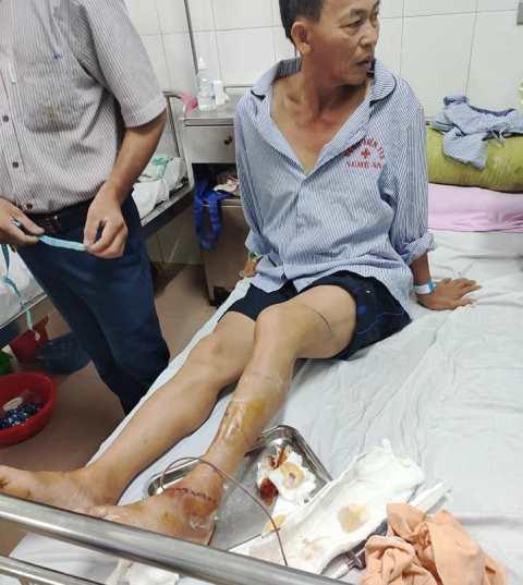 ông an viên Phạm Trung Kiền bị đối tượng Phan Văn Thương đứt gân chân, mẻ xương chân
