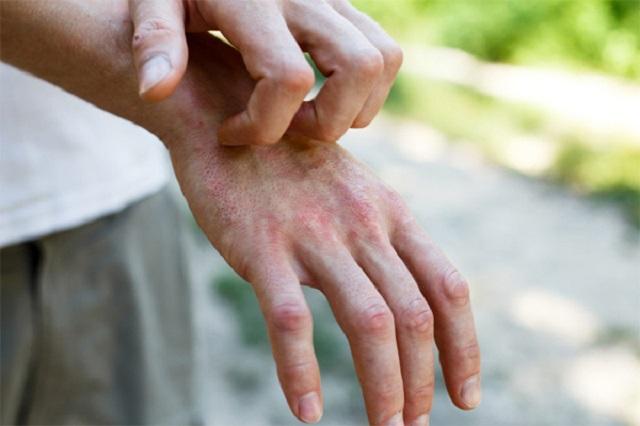 Ngứa ngáy trên da có thể là biểu hiện của bệnh nhân nhiễm nCoV. Ảnh minh họa: Irish skin