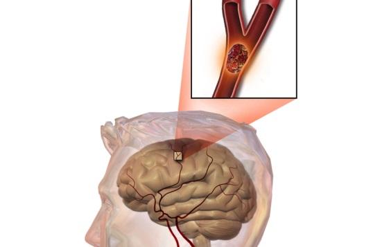 Đột quỵ nhồi máu não chiếm hơn 80% số ca đột quỵ