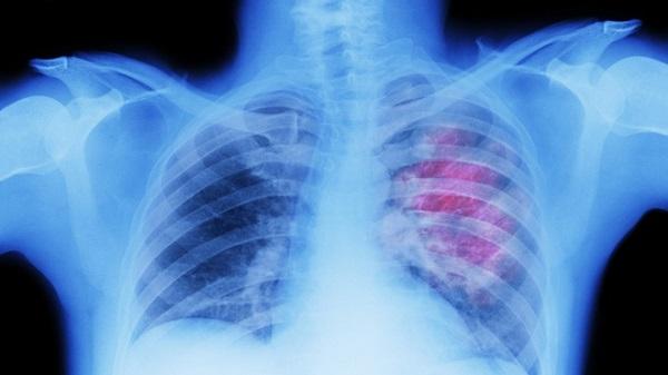 Theo kết quả nghiên cứu từ các nhà khoa học Anh, tỷ lệ bệnh nhân mắc Covid-19 bị thủng phổi nặng là 0,91%. Ảnh: RT.