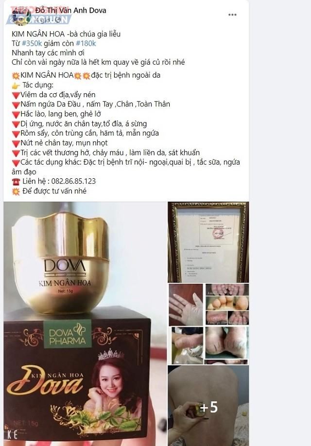 """Trên trang facebook Đỗ Thị Vân Anh Dova, có quảng cáo sản phẩm """"KIM NGÂN HOA -bà chúa gia liễu"""""""