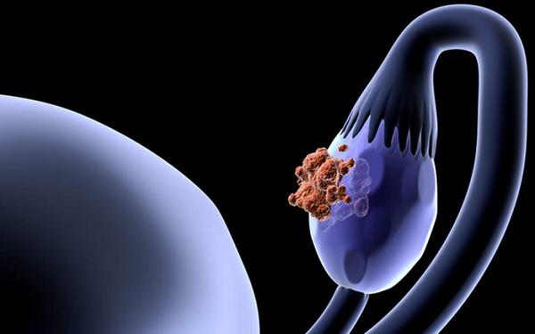 Nguy cơ bị ung thư buồng trứng do viêm kéo dài