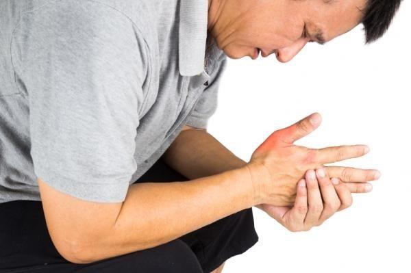 Dấu hiệu bệnh gút ở khớp ngón tay