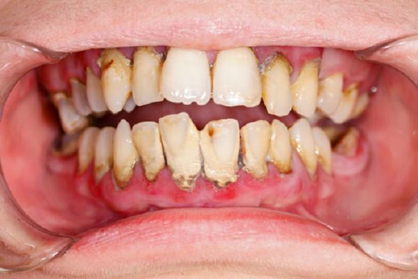 Vệ sinh răng miệng không sạch sẽ gây hôi miệng