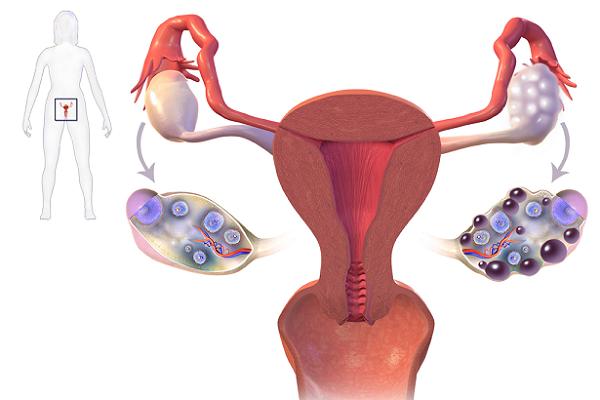 Buồng trứng đa nang có thể gây vô sinh nữ