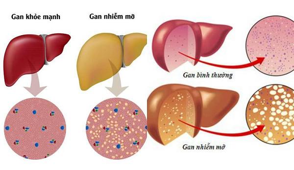 Gan nhiễm mỡ ngày càng trở nên phổ biến