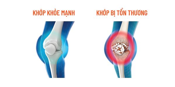 Viêm xương khớp với cơn đau nhức kéo dài làm sụt giảm chất lượng sống